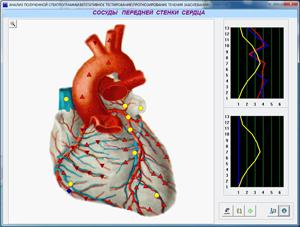 Диагностика на сърдечните съдове