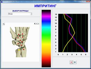 Зареждане на физиологичен спектронозод