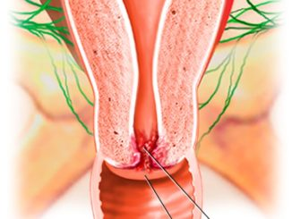 Рак на маточната шийка